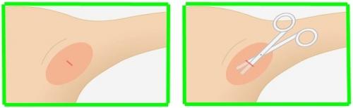 小さい傷をつけてそこから汗腺を吸引するという方法