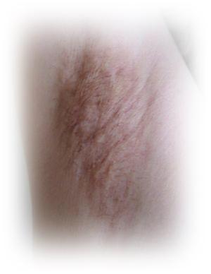 ワキガ手術による色素沈着のイメージ
