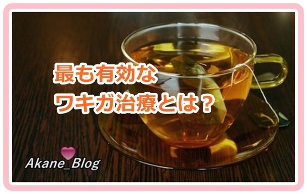 wkiga-chiryo_vd889.jpg